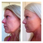 Hawaii Injectable anti aging fillers or Natural